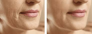 laser treatment for wrinkles reading