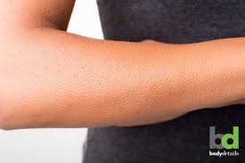 laser hair removal can treat your