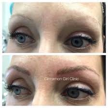 eyebrow microblading blonde hair. blonde eyebrow tattooing! www.cinnamongirlclinic.ca microblading hair a