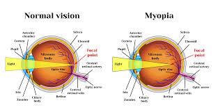 Bateseyeexercises Com Myopia Exercises