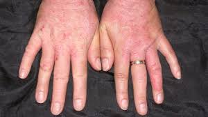 Itching: Pictures, Causes, Diagnosis, and Home Remedies