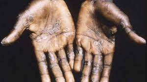 What is monkeypox? The virus affecting ...