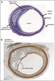 the pathology of atherosclerosis