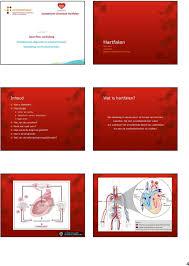 Symptomen van hartfalen ; zo herken je ze!