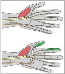 sensory an nerve deficit transfer of the sensory branches from the ulnar nerve to the fourth web e to the sensory branches of the first web e