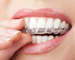 Dental Design Studio Gilbert Az 3900 Invisalign Braces Coupon Dental Design Studio