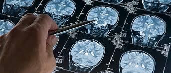 Afbeeldingsresultaat voor afbeelding hersenen ms