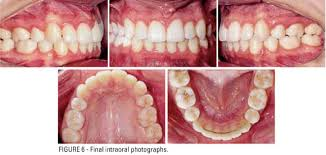 Maxillary Second Molar Extraction Of Upper Second Molars For Treatment Of Angle Class Ii