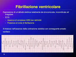 Fibrillazione Ventricolare Sintomi