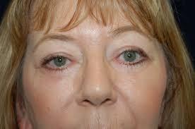 following a upper adn lower eyelid lift in sacramento california