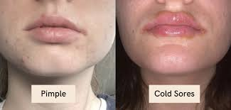 pimples on lip line possible causes