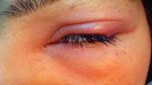 how to get rid of a eye stye with castor oil causes symptoms treatment you