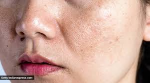 Though many use coffee in scrubs and face masks a few times a week, i wanted to instead use it every day. This Homemade Mask Will Come To Your Rescue If You Are Worried About Pigmentation And Blemishes Lifestyle News The Indian Express