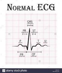Normal Ecg Electrocardiogram P Wave Pr Segment Pr