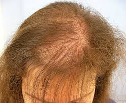 Thyroid Hair Loss Pattern