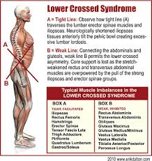 Lower crossed syndrome exercises pdf