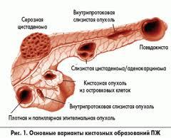 Alvleesklier, ook wel bekend als Pancreas