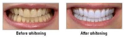 Teeth Whitening Bleaching Oralhealth In
