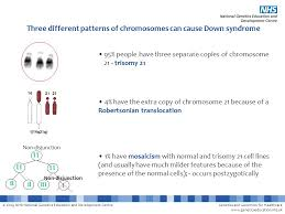 Down Syndrome This Powerpoint File Contains A Number Of