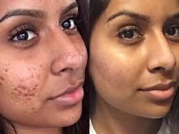 khan s skin transformation malia khan twitter makeup artist
