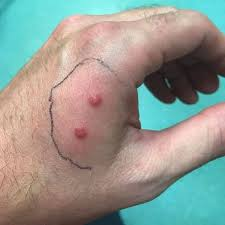 My hand was on fire': Snake bite turned dad's hand purple after he found 15  serpents in garden - Mirror Online