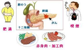 「膵臓がん」の画像検索結果
