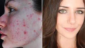 how to cover acne scars if you want to easy makeup transformation routine video dailymotion