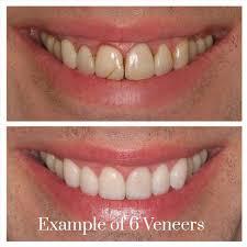 Porcelain Veneers Sydney Dental Veneers Sydney Teeth Veneers