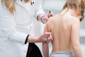 Image result for An Overview Of Scoliosis