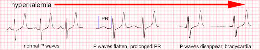 In An Ecg Pattern The P Wave Is Caused By