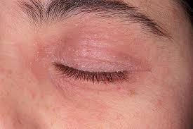 conditions that cause puffy and itchy eyelids