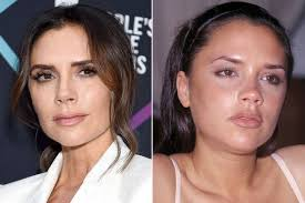 Get news & pictures of posh spice\'s latest fashion, hair & beauty style. Victoria Beckham S Plastic Surgery In Full After Claiming She S Never Been Tempted Irish Mirror Online