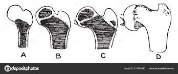 Coxa Vara Illustration Represents Ossification Femur Condition Coxa