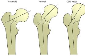 Coxa Vara Coxa Vara Causes And Treatment Bone And Spine