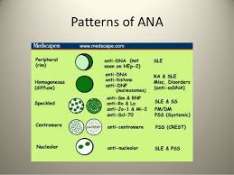 Ana Pattern Homogeneous Awesome Immunofluorescence