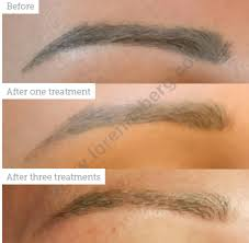 Permanent Makeup Removal - Aesthetics