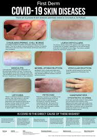 Urticarial, prickly heat covid fingers and toes. New Infographic Compares Rashes To Covid Toes Practical Dermatology
