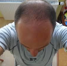 Tetování Vlasů Headstyle Diskuze Více Vlasůcz 1