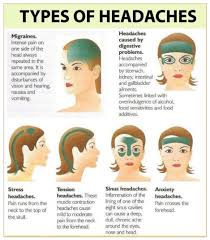 Different Types Of Headaches Chart This Is Good To Know Headache Remedies Tension