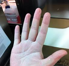 the people i worked in mcdonalds are the best i ve ever met what your hand looks like after you ve done the dive