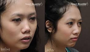 nose filler injection 03