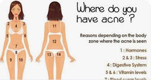Pimples On Body Chart The Location Of Acne On Your Body Has A Secret Meaning You
