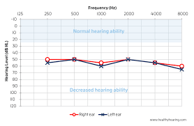 Normal Hearing Range Age Chart How To Read An Audiogram