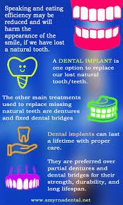 22 best Dental Implants images on Pinterest | Dental implants ...