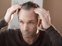 تكثيف الشعر للرجال في اسبوع وصفاتي