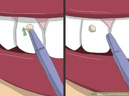 image led apply tooth gems step 11