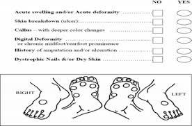 Diabetic Foot Exam Chart Internet Scientific Publications