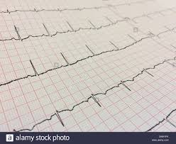 Close Up Of Electrocardiogram Electrocardiography Or Ekg