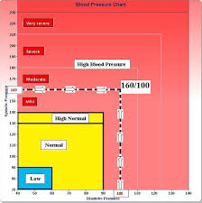 New Bp Chart The New High Blood Pressure Definition High Blood Pressure