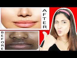 remove dark patches pigmentation dark